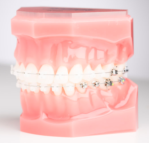 Advanced Ceramic Self-Ligating Braces at ​PEARL ALIGN™ Orthodontic & Invisalign Clinic Bangalore