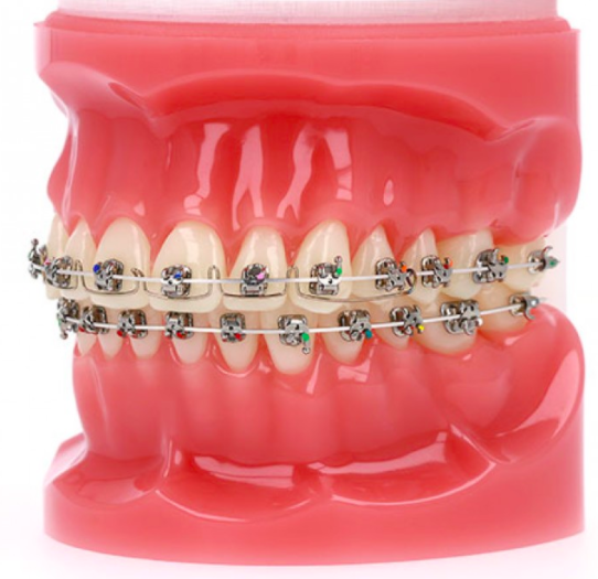 Advanced Metal Self-Ligating Braces at PEARL ALIGN™ Orthodontic & Invisalign Clinic Bangalore ​