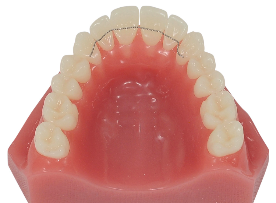 Retainers after braces at PEARL ALIGN™ Orthodontic & Invisalign Clinic Bangalore